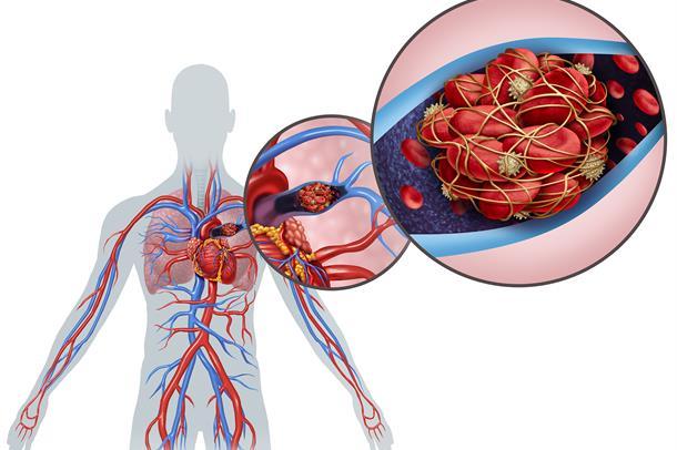 Lungeemboli (blodpropp i lungen) er en alvorlig tilstand som kan føre til død.